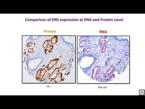 Treatment of chronic prostatitis zinc