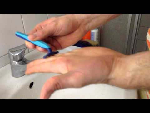 Obsolet gribok der Nägel zu behandeln