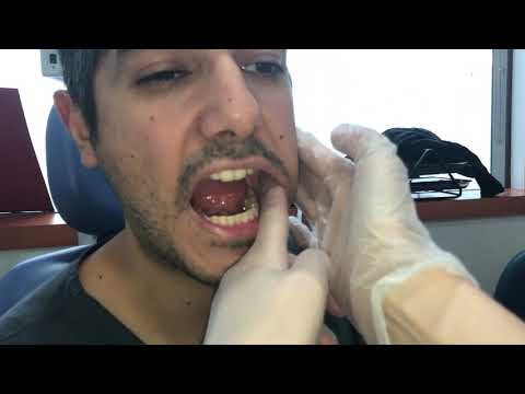 Wart virus and cancer