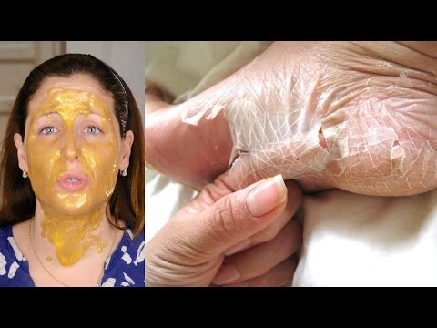 Pacchi di faccia di argilla gialli