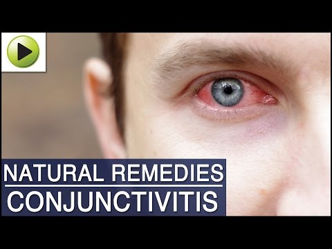 Video Conjunctivitis (Pink Eye) - Natural Ayurvedic Home Remedies