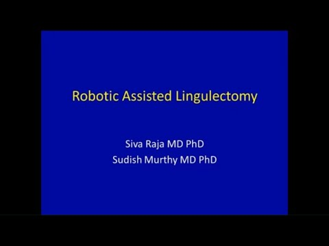 Robotic Lingulectomy For Lung Mass