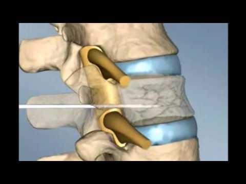 Gimnasia tratamiento osteocondrosis intervertebral con osteocondrosis cervical