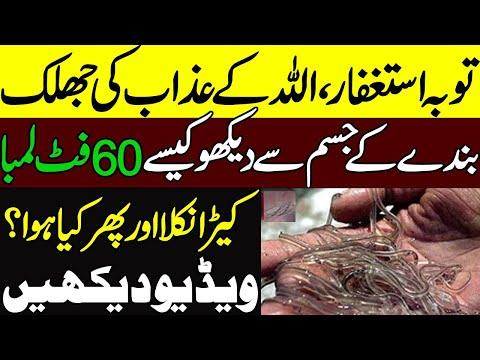 بندے میں سے 60 فٹ لمبا کیڑا نکل آیا ،ویڈیو نے کروڑوں پاکستانیوں کو سکتے میں ڈال دیا :ویڈیو دیکھیں