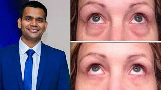 Puffiness Under The Eye - Some Causes And Home Remedy