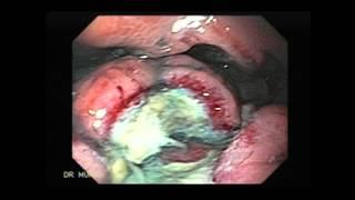 Endoscopy of Gastric Maltoma
