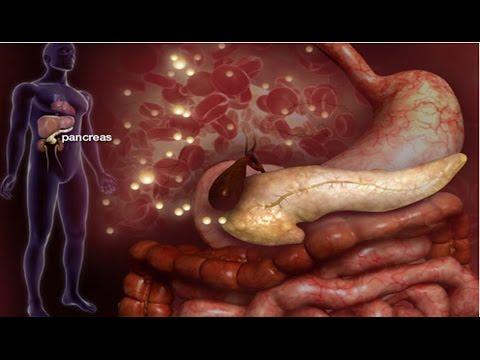 Diabéticos menu de índice glicêmico