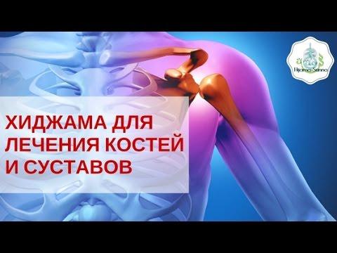 Остеохондроз позвоночника и его причины