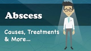 Abscess - Causes, Treatments & More…