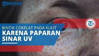 Mengenal Freckles, Bintik Cokelat pada Kulit Muncul akibat Melanin Berlebih dan Paparan Sinar UV