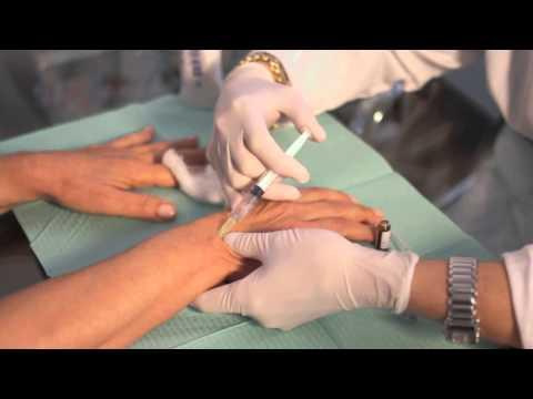 Spalla glenoide articolazione