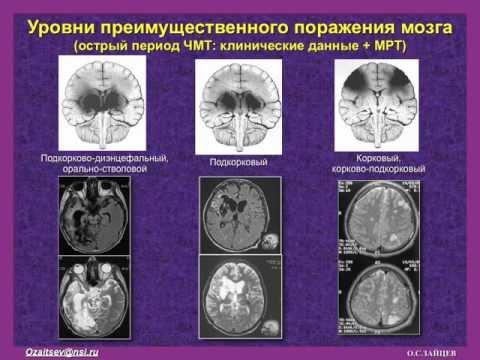 Синдромы помрачения сознания