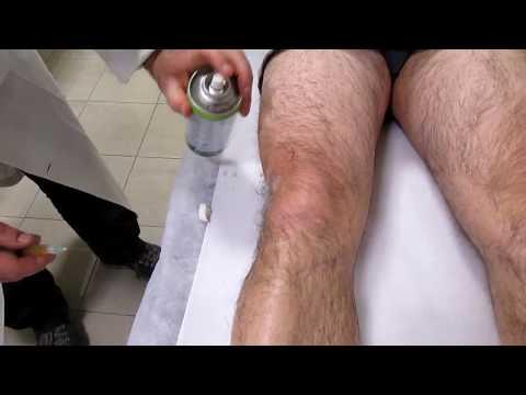 Trattamento delle articolazioni in chirurgia cani