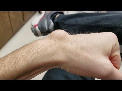 Behandlung podarthritis