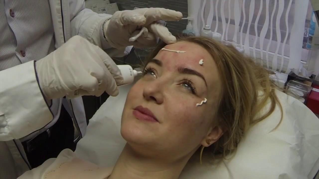 Injection de toxine botulique : tiers supérieur du visage - Botulinum Toxin Injection