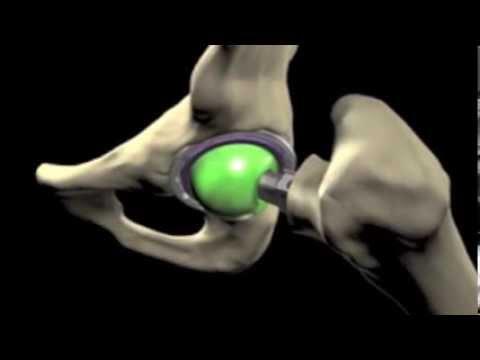 Trattamento in tensione dei legamenti del ginocchio