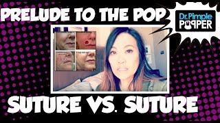 Why Subcutaneous Sutures vs Simple Interrupted Suture?!