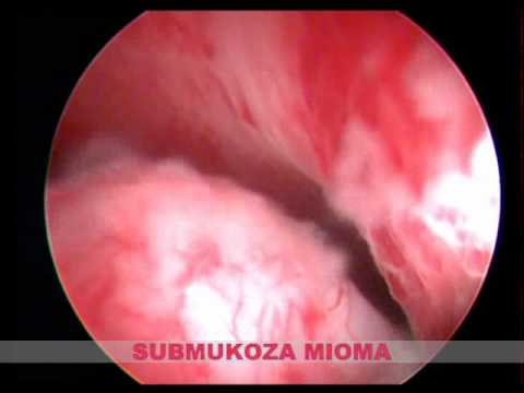 Turp ķirurģija pēcoperācijas ārstēšanu