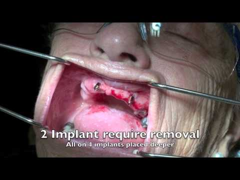 How to remove a dental implant - 3 cases