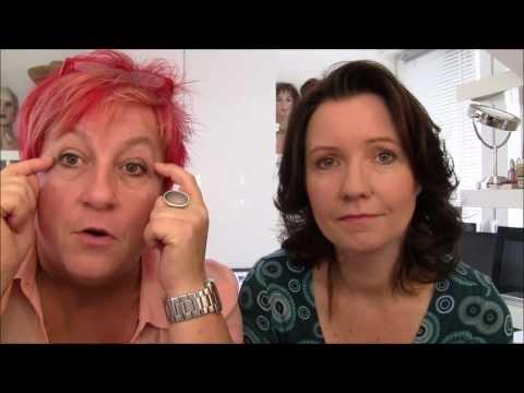 Die Pigmentflecke auf der Stirn bei der Frau