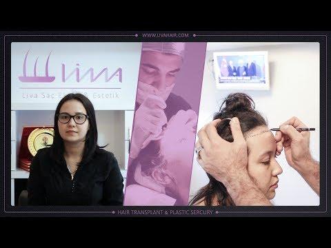 Трансплантация волос для женщин без бритья головы налысо и совершенно без боли
