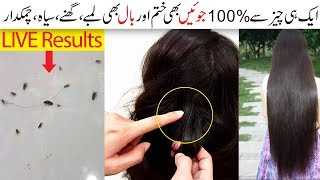 Lice In Hair 100% Removal Remedies Also Useful For Long Shiny Hair Urdu Hindi