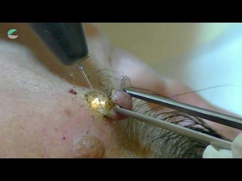 Extraccion de Verrugas con Plasmalaser SCORPION