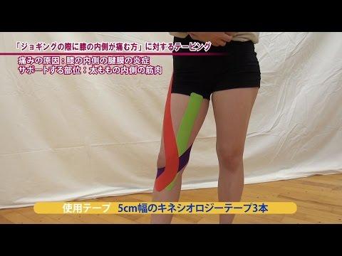 【膝の内側の違和感や痛み】ランニング動作が多い方にオススメなテーピング【予防にも◎】