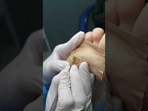 Sucuri detoxifiere acnee