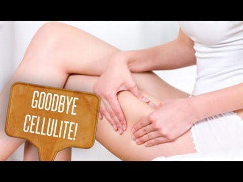 Emicrania a perdita di peso