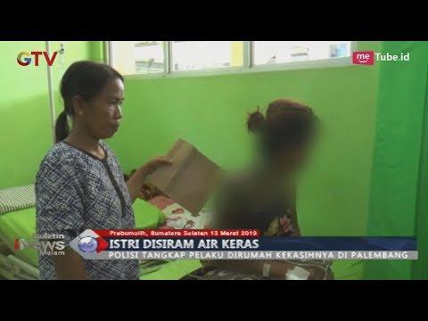 Kesal Sering Tak di Rumah, Suami di Prabumulih Tega Siram Istri dengan Air Keras - BIM 13/03