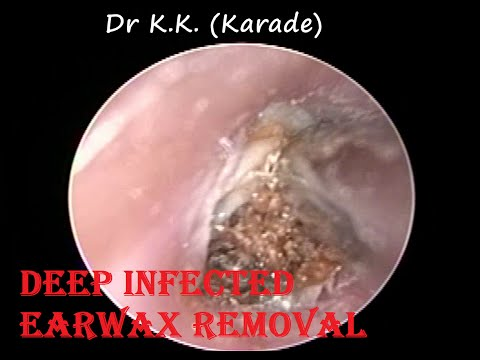 Video Suffering from Ear Blockage ,Ear Pain since last 3 month - Got relief after Procedure