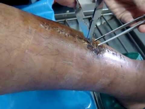 เส้นเลือดแพทย์แมงมุมบนขา