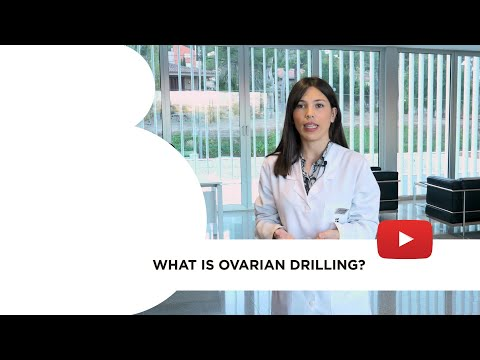 What is ovarian drilling?