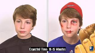 Makeup Tutorial: Athletic Injuries