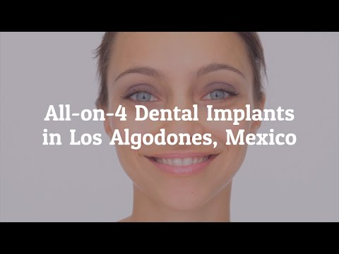 Affordable and Effective All on 4 Dental Implants Procedure in Los Algodones, Mexico