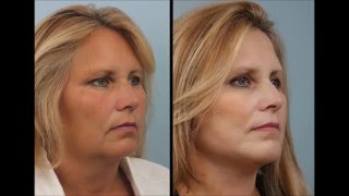 What is a face lift? with Dr. Edwin Williams