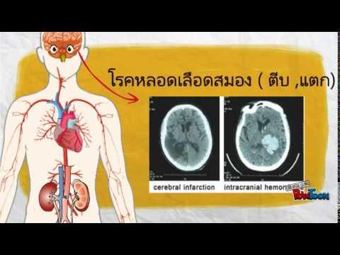 การรักษาของเด็กโดยโครงการ nemozolom lamblia