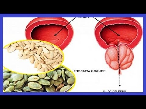 Descripción del cáncer de próstata