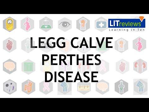 Az akut lábízületi gyulladás kezelése