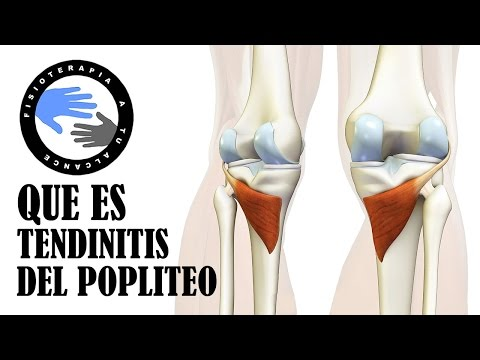 Enfermedades crónicas de la columna vertebral y las articulaciones