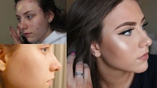 How I Cleared My Skin FAST | Face & Body Acne Skincare & Treatments