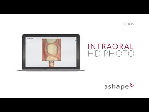 3Shape TRIOS - HD Photo
