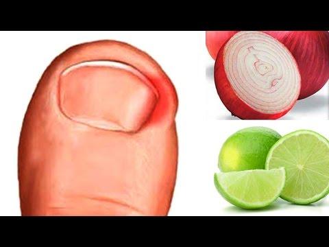 Las cremas contra el hongo de los pie y las uñas