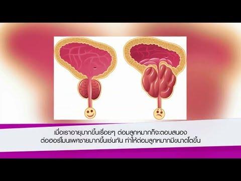 เส้นเลือดขอดในช่องท้อง