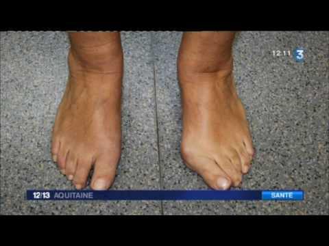 Le traitement de la varicosité près des jeunes