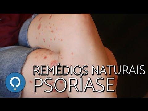 O que as bactérias causam à dermatite atopic