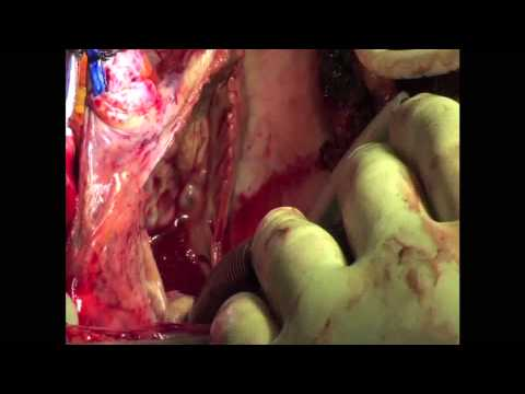 Mitral and Tricuspid Valves Repair With Ablation Of Atrial Fibrillation