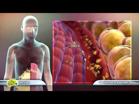Сахарный диабет болезнь органов