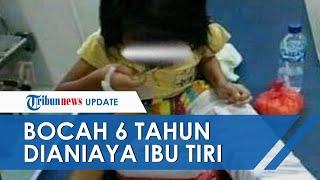 Bocah 6 Tahun Diduga Dianiaya Ibu Tiri, Korban Keluar Lewat Jendela Kontrakan dan Jalan Terseok-seok
